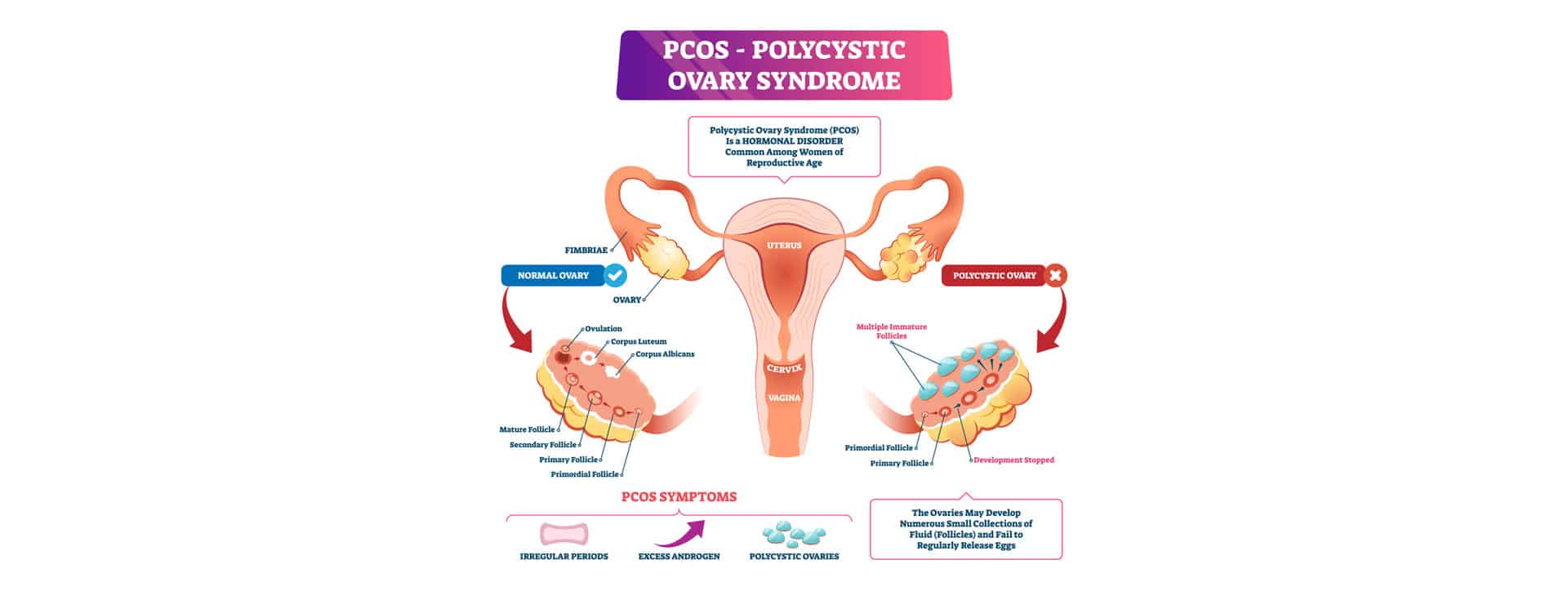 Fight PCOS, Diabetes, and Infertility with Myoinositol